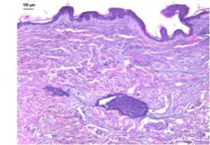 histology of OncoSkin® skin cancer model for melanoma