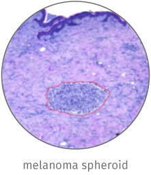 Melanoma skin cancer model illustration