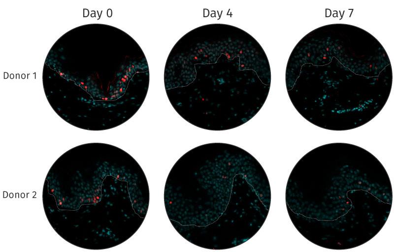 Viability and response NativeSkin human skin models