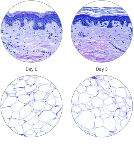 Macroscopic view of adipose tissue models subcutaneous injections HypoSkin®