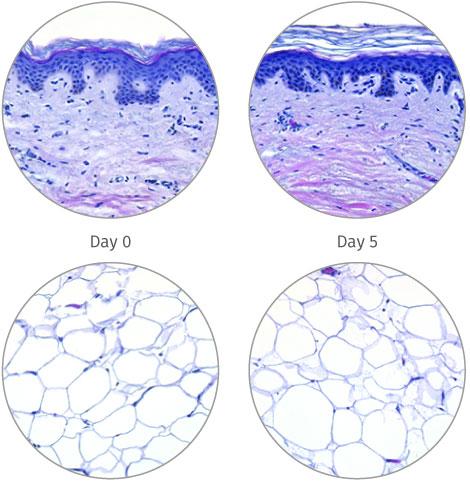 human skin model for subcutaneous