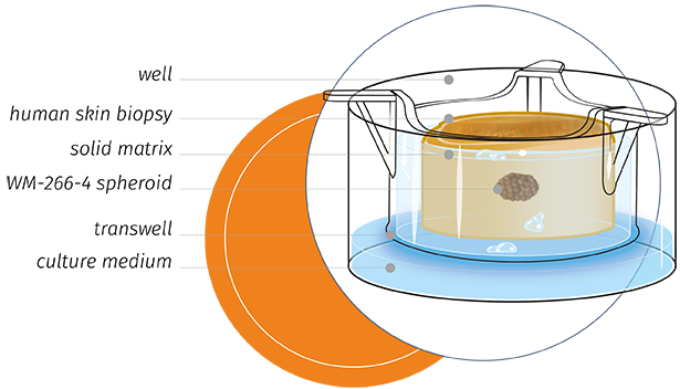 OncoSkin human skin melanoma study model