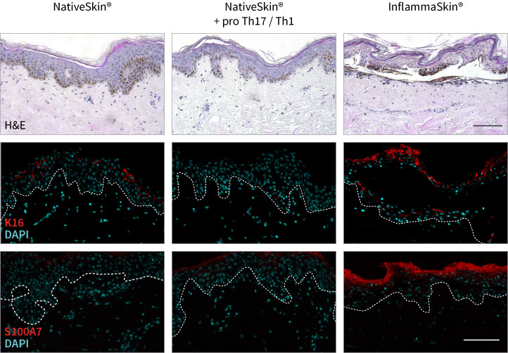 Histological characterization and expression of pro-inflammatory markers in InflammaSkin®, our psoriasis model.