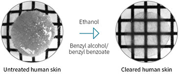 Illustration showing a human skin biopsy before and after optical clearing with ethanol and benzyl alcohol/benzyl benzoate