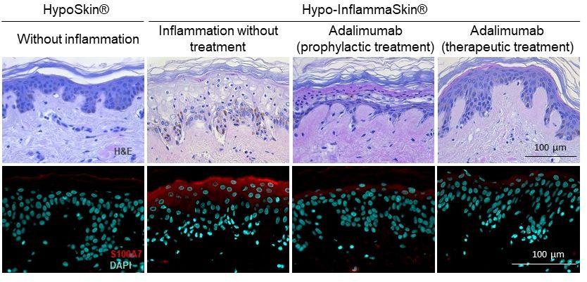 psoriasis biologics histology adalimumab