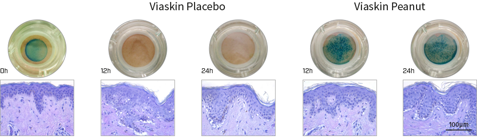 Skin biopsies photos and histology. Macroscopical and histological evaluation of tissue integrity during treatment