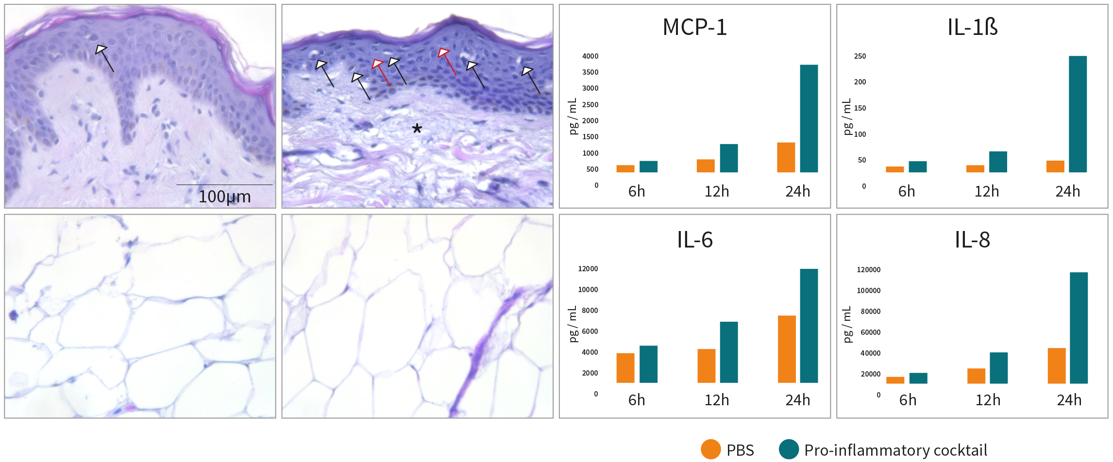 Histology photos and graphics showing local inflammatory reactions