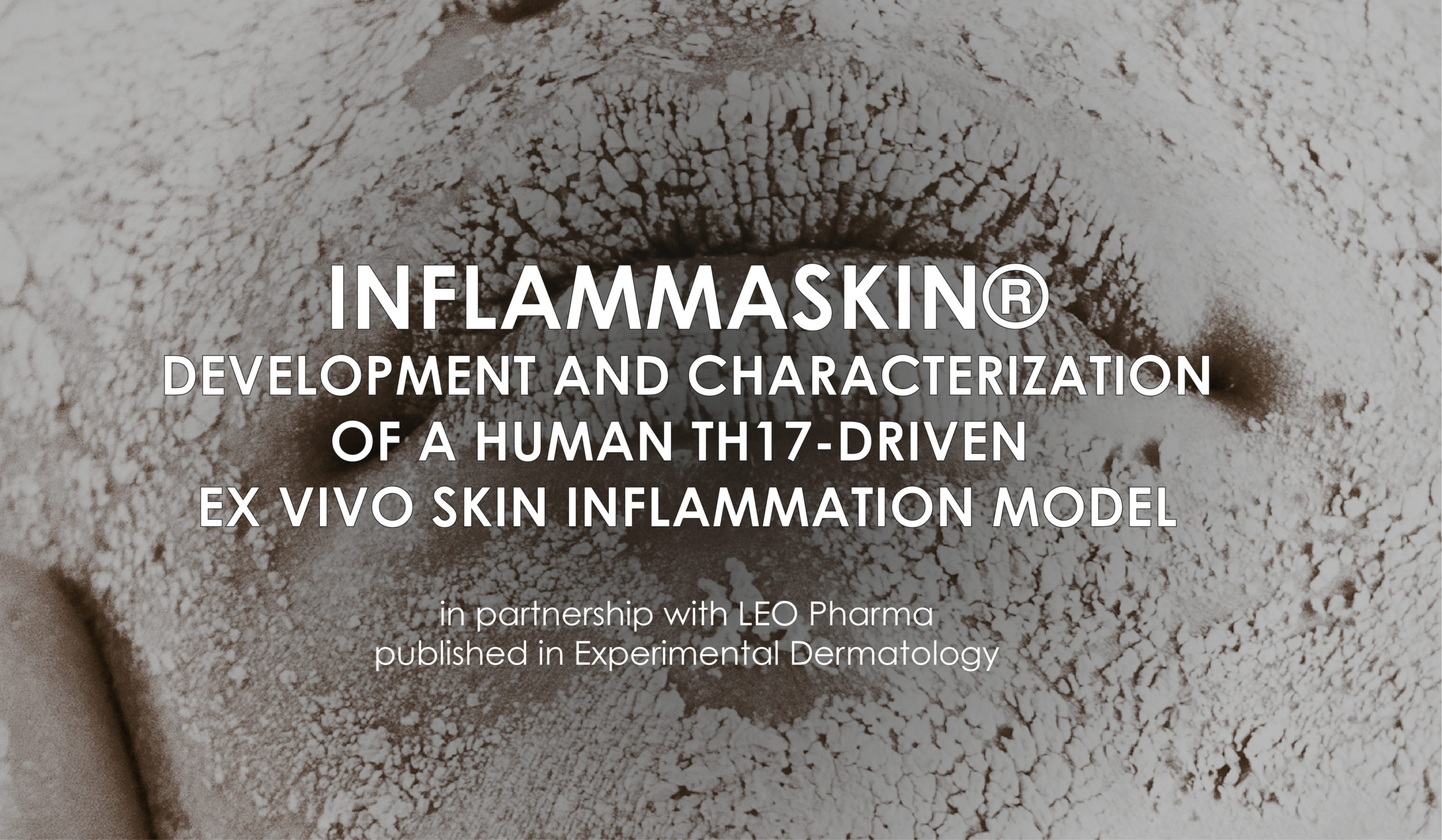 InflammaSkin: development and characterization of a human th17-driven ex vivo skin inflammation model